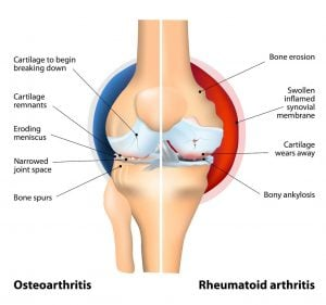 Diagram of a knee joint comparing signs and symptoms of rheumatoid arthritis and osteoarthritis