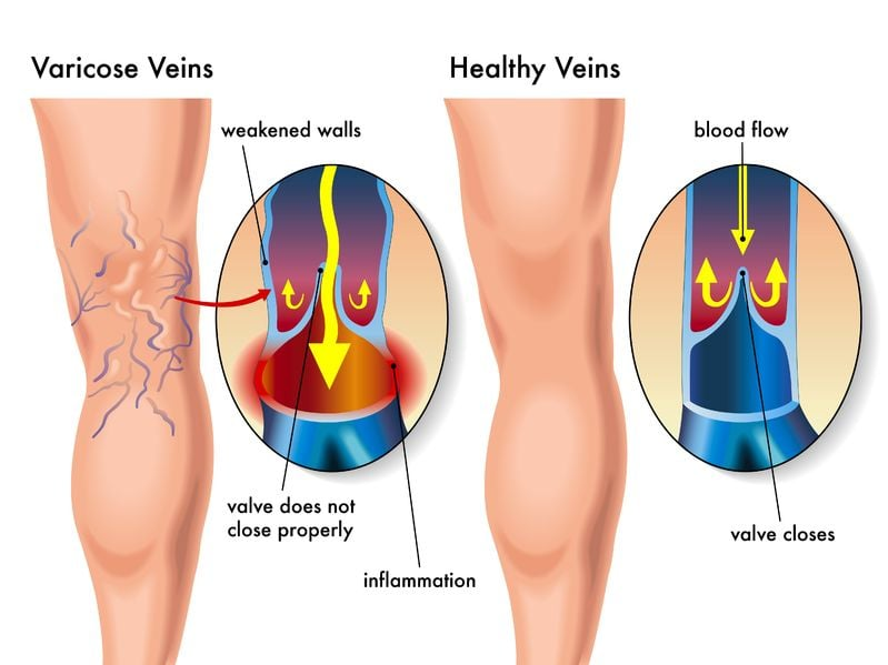 A diagram of a leg with varicose veins