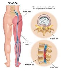 Diagram showing how sciatica cam be caused by a lumbar disc injury disc bulge or herniation