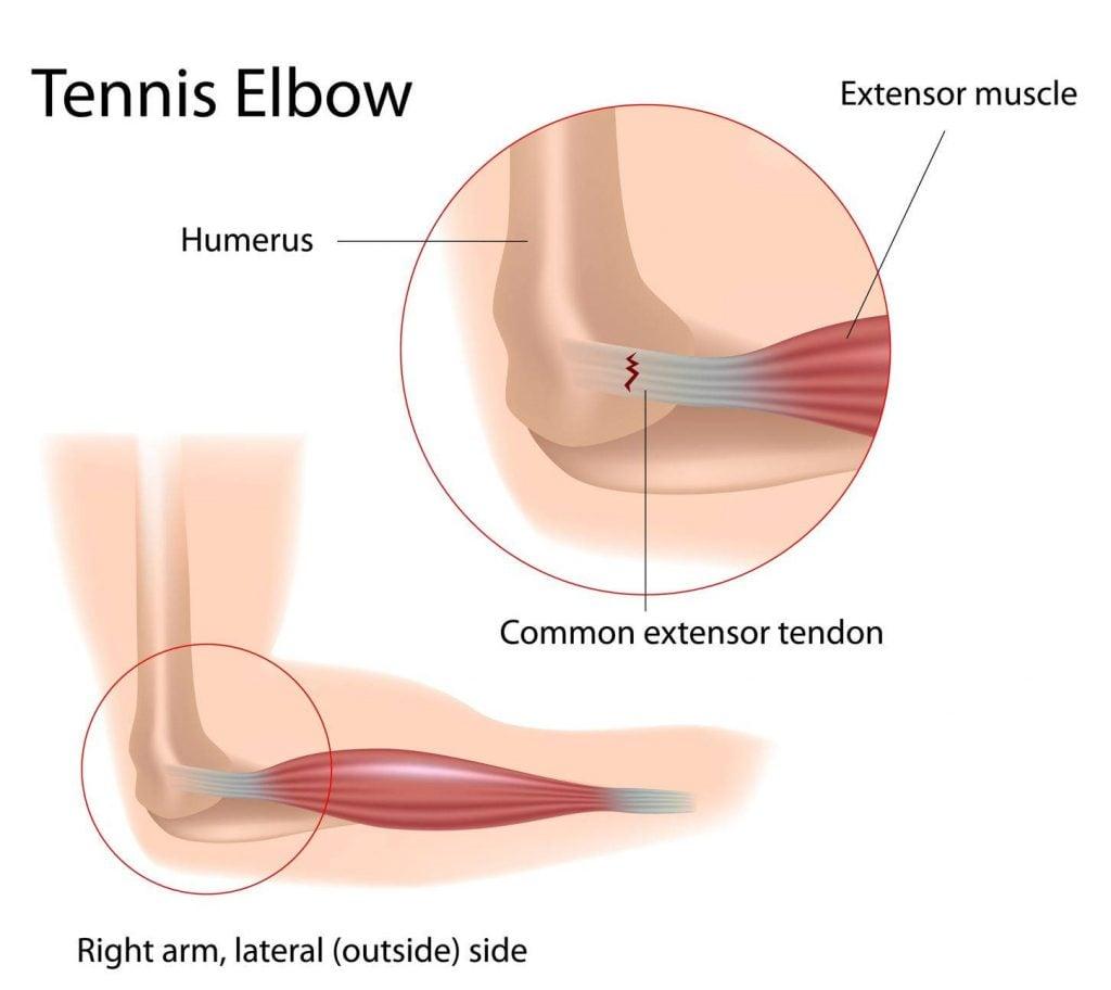 diagram of tenis elbow