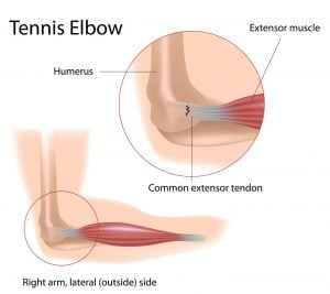 diagram of tenis elbow